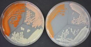petri-dish-2-300x155.jpg#asset:135